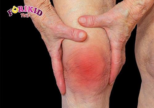 Viêm khớp Rheumatoid khiến chân đau nhức và ra mồ hôi trộm
