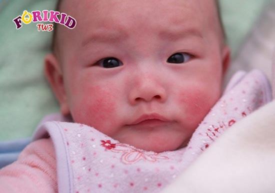 Trẻ 6 tháng bị chàm sữa khiến bé khó chịu gây biếng ăn