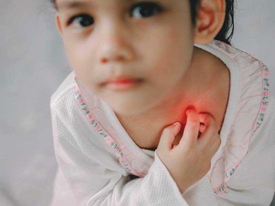 Các cơ quan không loại bỏ được hết độc tố khiến trẻ bị nóng trong