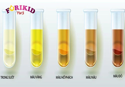 Ngoài màu vàng, nước tiểu của trẻ có thể chuyển sang nhiều màu sắc khác tùy tình trạng cơ thể